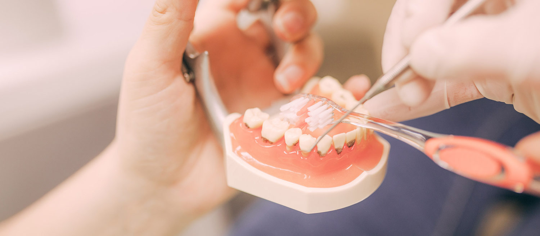 Anleitung zum Zähneputzen mit Hilfe eines Gebissmodells in der Zahnarztpraxis Nagel