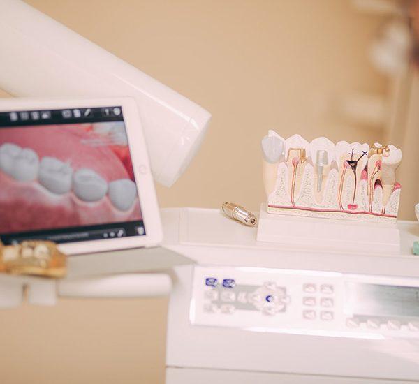 Zahnmodell neben Behandlungsinstrumenten in der Zahnarztpraxis Nagel in Themar
