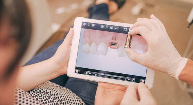 Zahnarzt hält Modell eines Zahnimplantats in der Hand.